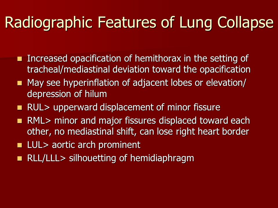 Radiographic Features of Lung Collapse Increased opacification of hemithorax in the setting of tracheal/mediastinal deviation toward the opacification