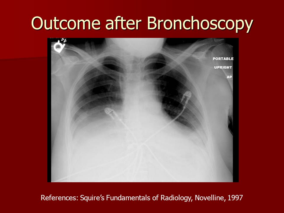 Outcome after Bronchoscopy References: Squire's Fundamentals of Radiology, Novelline, 1997