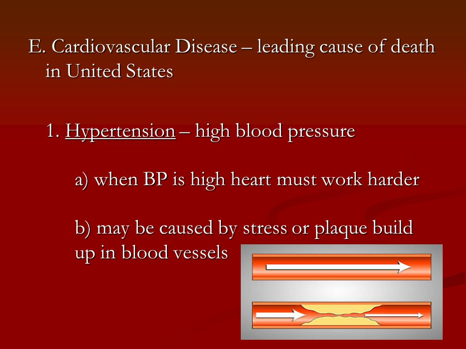 E. Cardiovascular Disease – leading cause of death in United States 1. Hypertension – high blood pressure a) when BP is high heart must work harder b)