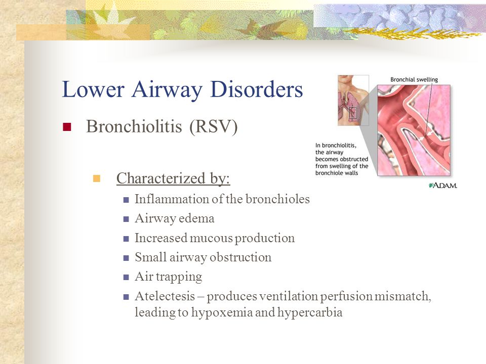 Lower Airway Disorders Bronchiolitis (RSV) Affects Primarily infants 2 – 6 months, up to 2 years; greater incidence in males and infants with bronchop
