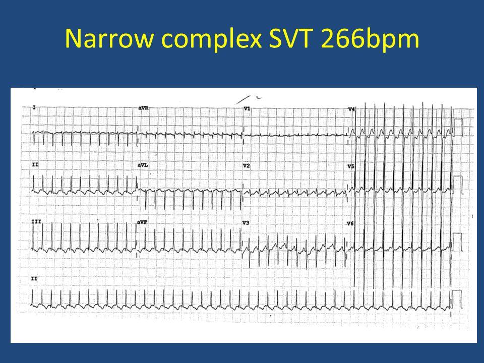 Narrow complex SVT 266bpm