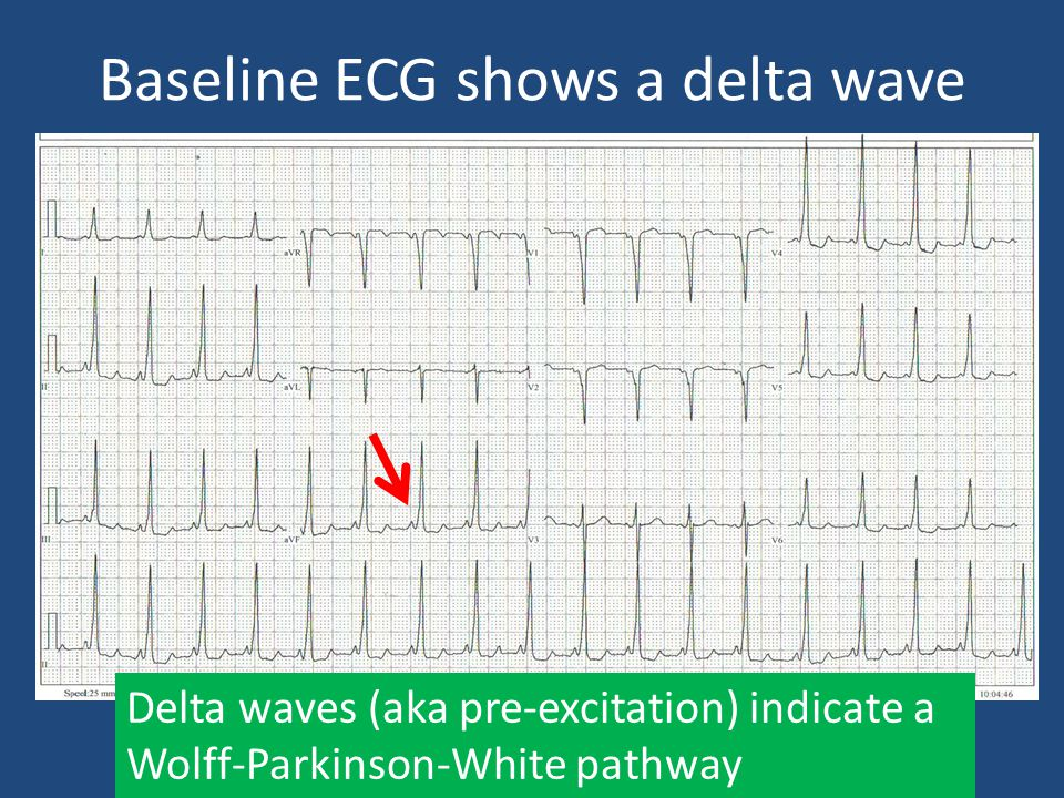 Baseline ECG shows a delta wave Delta waves (aka pre-excitation) indicate a Wolff-Parkinson-White pathway