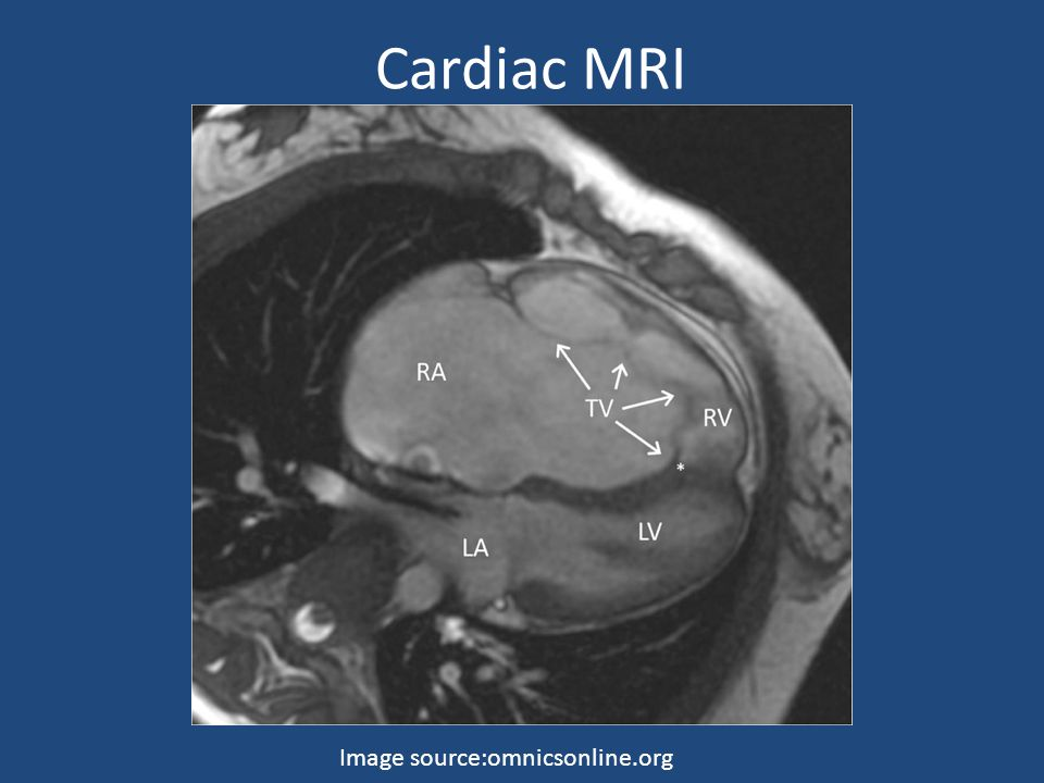 Cardiac MRI Image source:omnicsonline.org