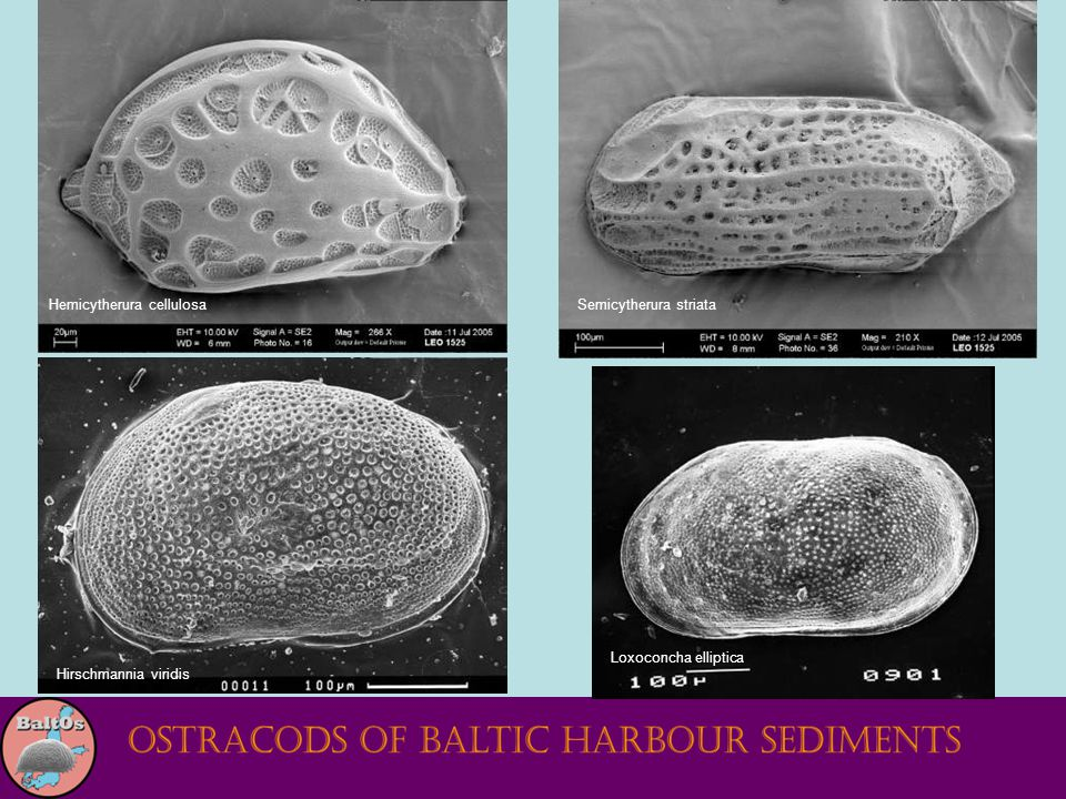 Hemicytherura cellulosa Loxoconcha elliptica Hirschmannia viridis Semicytherura striata
