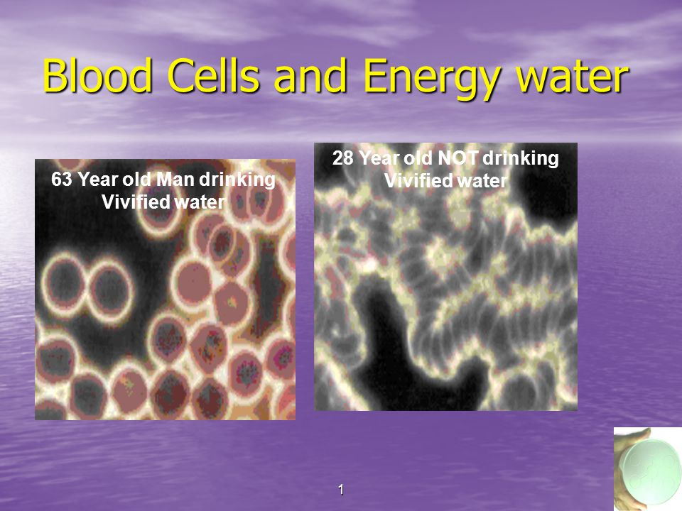 112 Blood Cells and Energy water 63 Year old Man drinking Vivified water 28 Year old NOT drinking Vivified water