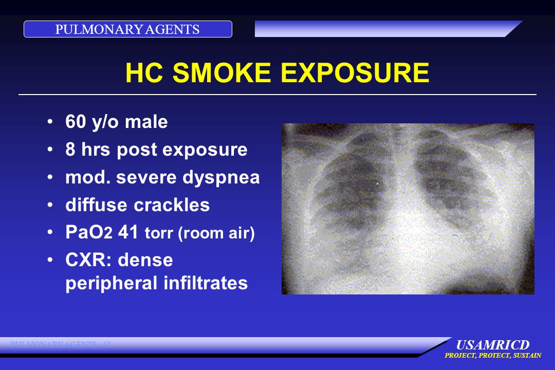 PULMONARY AGENTS USAMRICD PROJECT, PROTECT, SUSTAIN PULMONARY AGENTS 42 HC SMOKE EXPOSURE 60 y/o male 8 hrs post exposure mod.