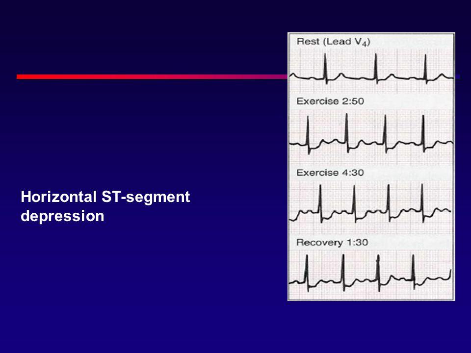 Horizontal ST-segment depression