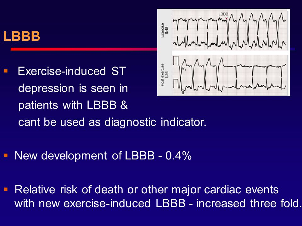 LBBB  Exercise-induced ST depression is seen in patients with LBBB & cant be used as diagnostic indicator.