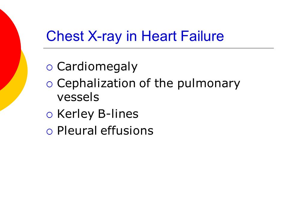 Chest X-ray in Heart Failure  Cardiomegaly  Cephalization of the pulmonary vessels  Kerley B-lines  Pleural effusions