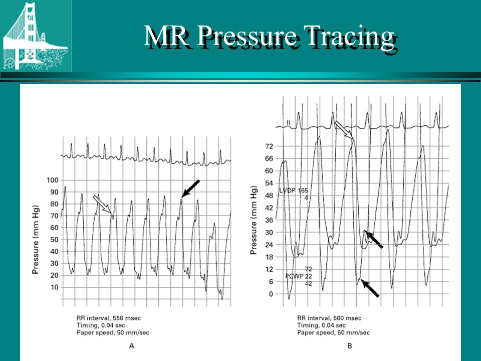 © Continuing Medical Implementation ® …...bridging the care gap MR Pressure Tracing
