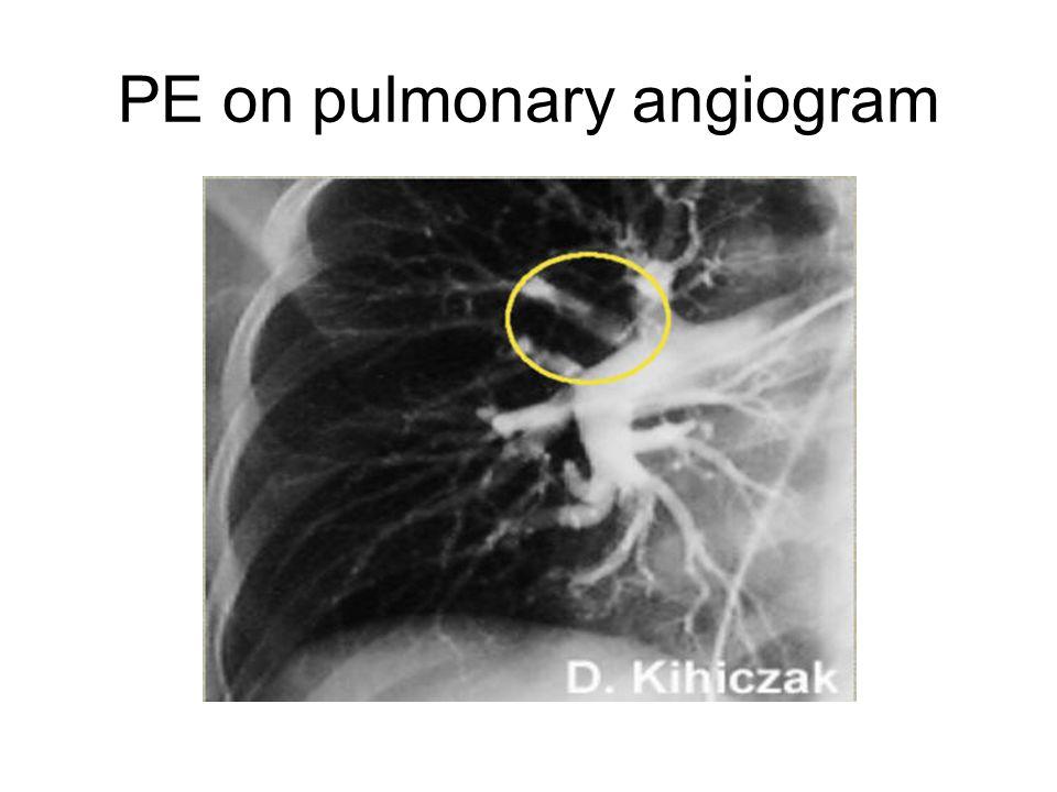 PE on pulmonary angiogram