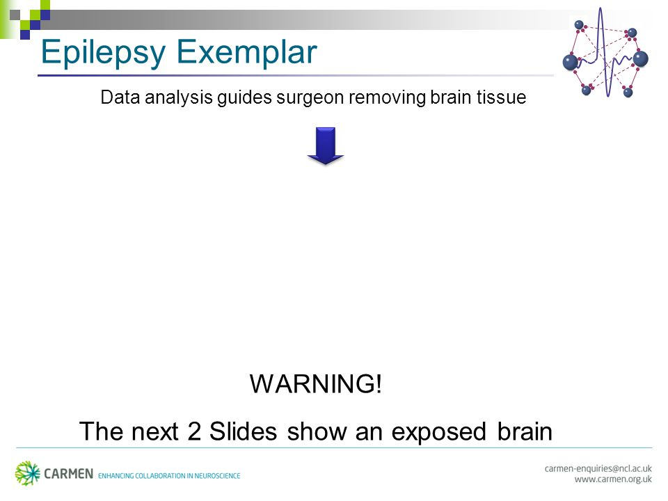 Epilepsy Exemplar Data analysis guides surgeon removing brain tissue WARNING.