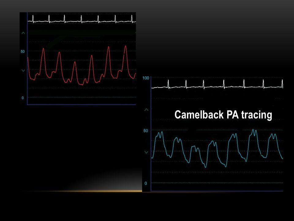 Camelback PA tracing