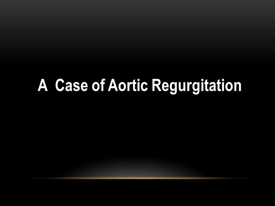 A Case of Aortic Regurgitation