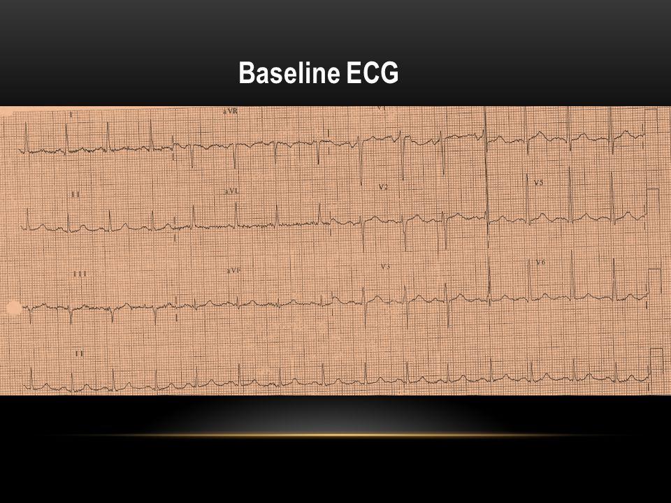 ECG in Emergency Room