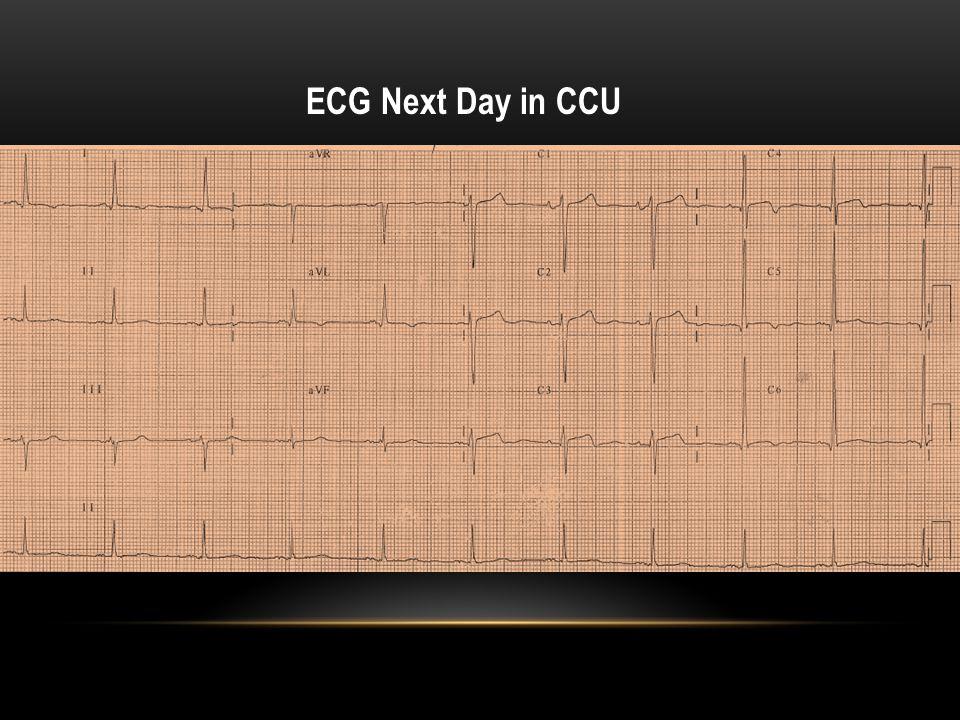 ECG Next Day in CCU