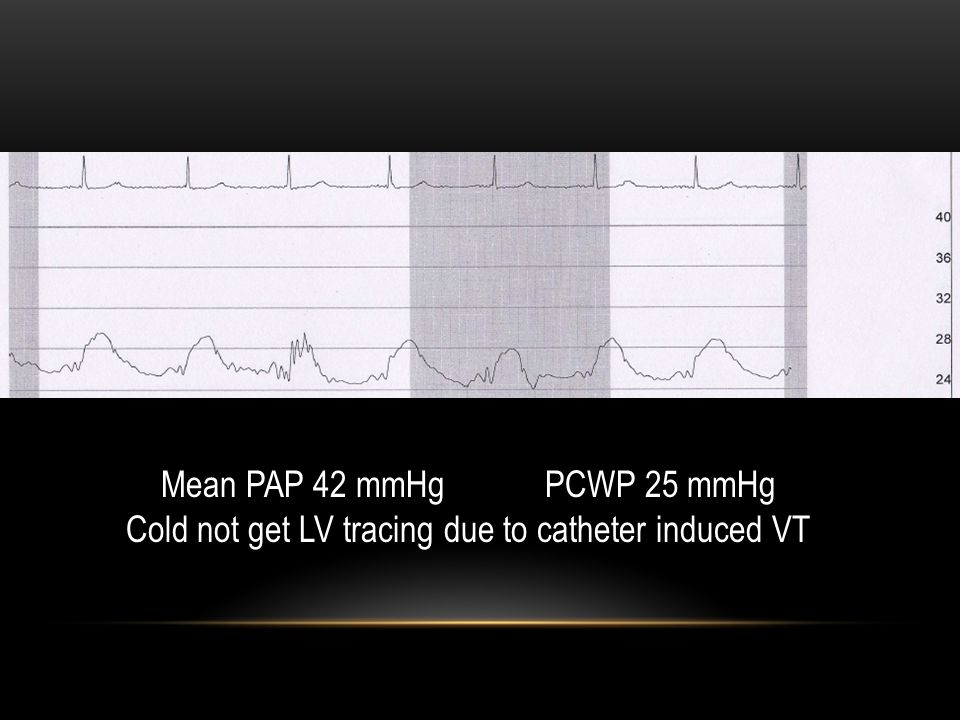 Mean PAP 42 mmHg PCWP 25 mmHg Cold not get LV tracing due to catheter induced VT