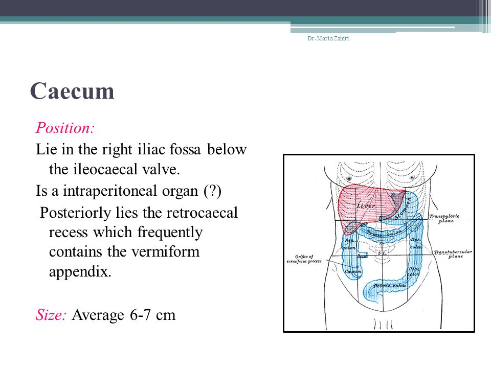 The Sudeck s point (or Sudeck s critical point): refers to a specific location in the arterial supply of the rectosigmoid junction, namely the origin of the last sigmoid arterial branch from the inferior mesenteric artery (IMA).