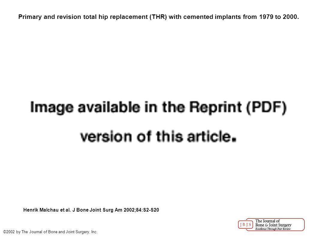 Primary and revision total hip replacement (THR) with cemented implants from 1979 to 2000.