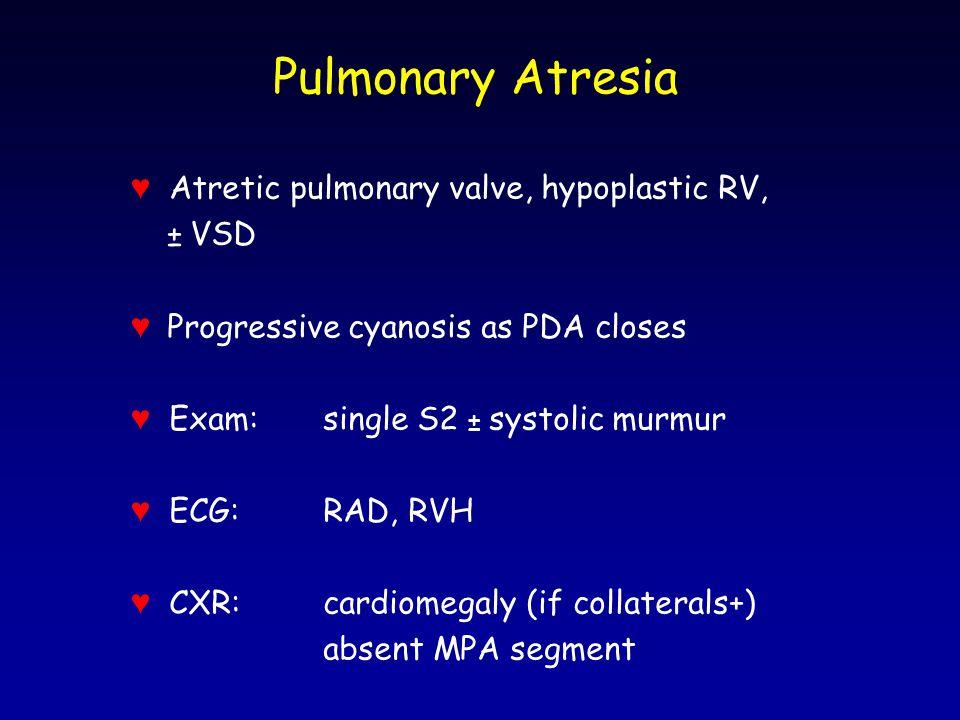 Pulmonary Atresia ♥ Atretic pulmonary valve, hypoplastic RV, ± VSD ♥ Progressive cyanosis as PDA closes ♥ Exam:single S2 ± systolic murmur ♥ ECG:RAD,