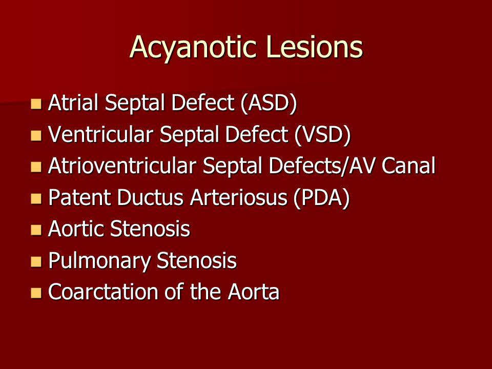 Acyanotic Lesions Atrial Septal Defect (ASD) Atrial Septal Defect (ASD) Ventricular Septal Defect (VSD) Ventricular Septal Defect (VSD) Atrioventricul