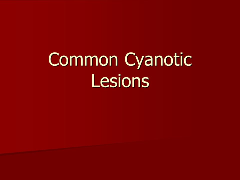 Common Cyanotic Lesions