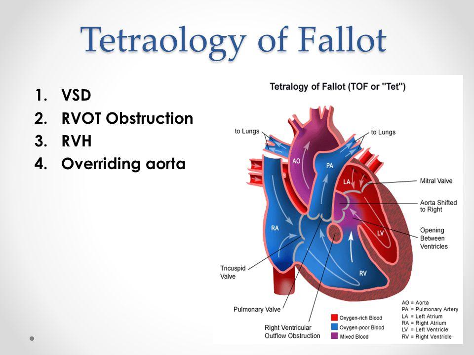 Tetraology of Fallot 1.VSD 2.RVOT Obstruction 3.RVH 4.Overriding aorta