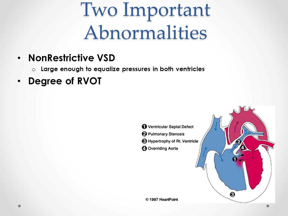Two Important Abnormalities NonRestrictive VSD o Large enough to equalize pressures in both ventricles Degree of RVOT