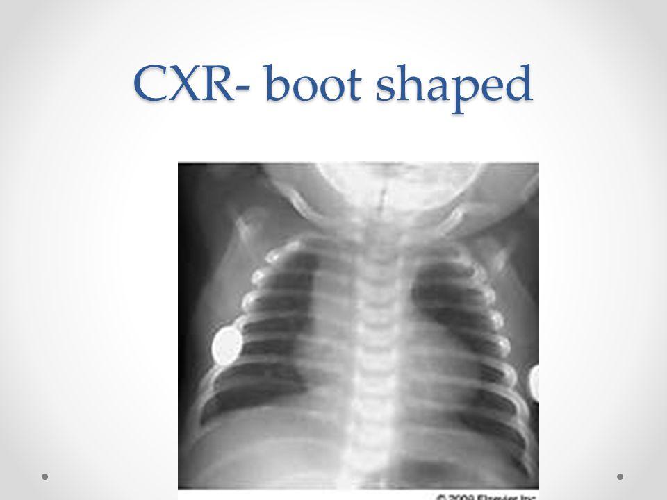CXR- boot shaped