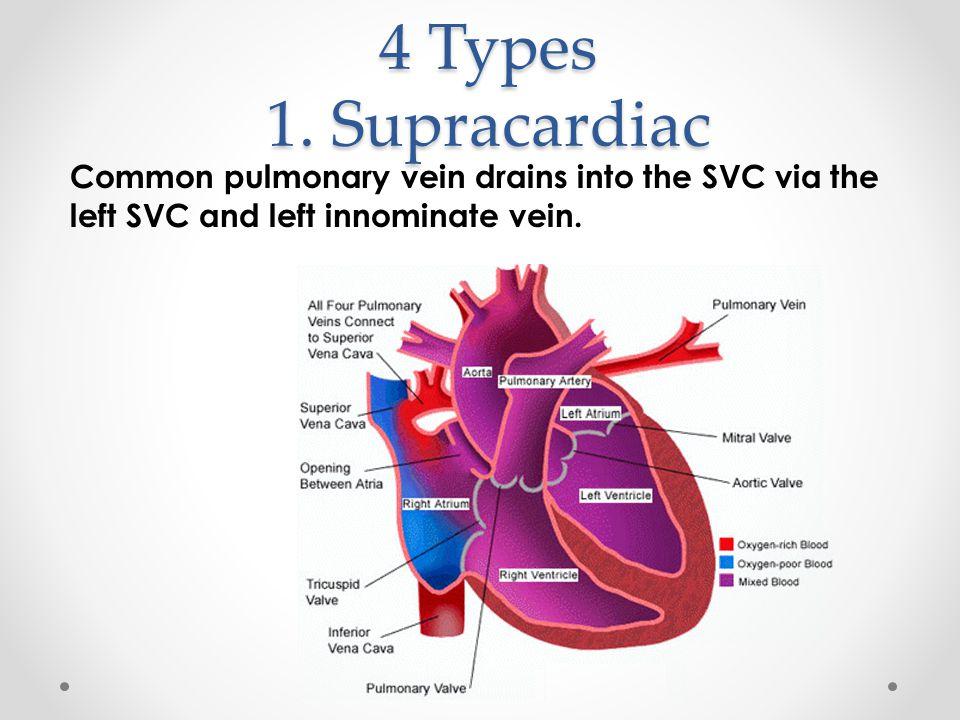 4 Types 1. Supracardiac Common pulmonary vein drains into the SVC via the left SVC and left innominate vein.