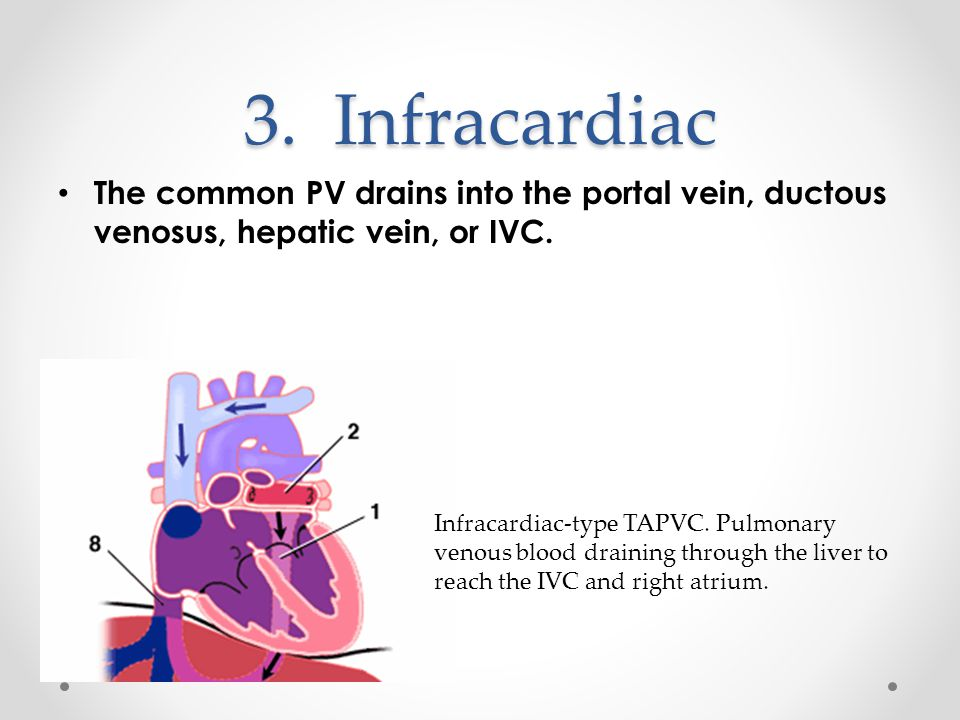 3.Infracardiac The common PV drains into the portal vein, ductous venosus, hepatic vein, or IVC.