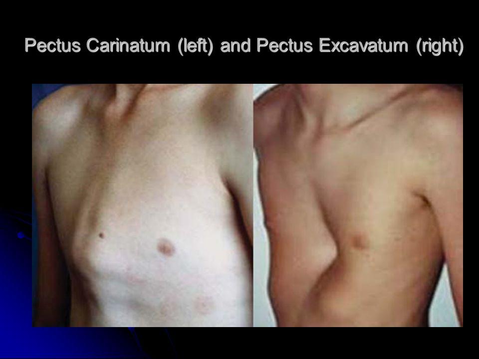 Cyanosis and clubbingCyanosis of the lips pectus excavatum deformity Pectus Carinatum