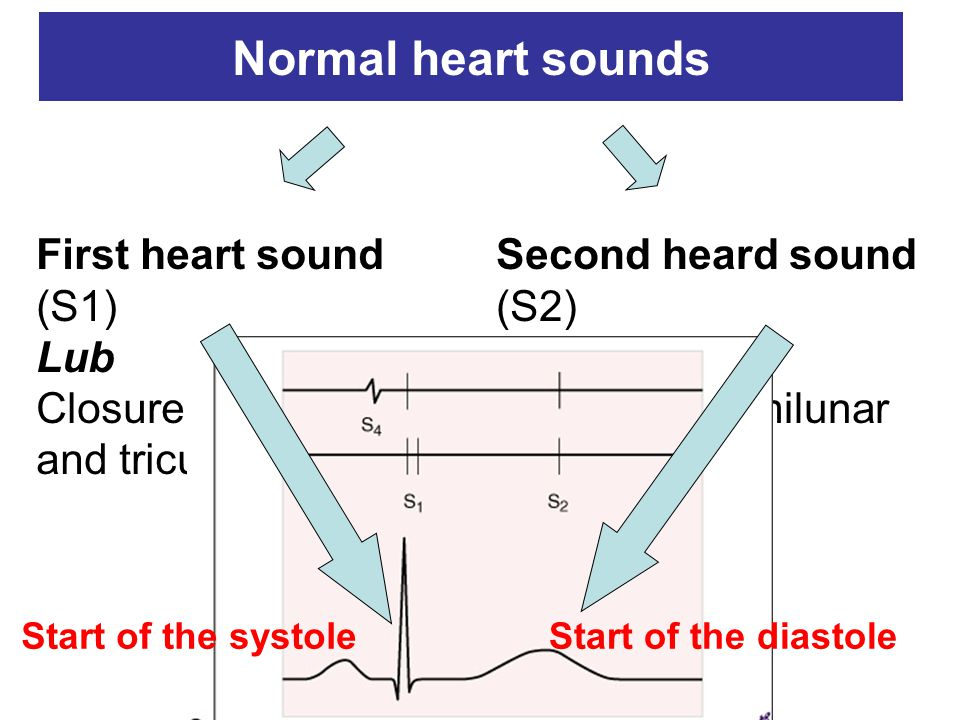 Normal heart sounds First heart sound (S1) Lub Closure of the mitral and tricuspidal valves Second heard sound (S2) Dub Closure of semilunar valves Start of the systoleStart of the diastole