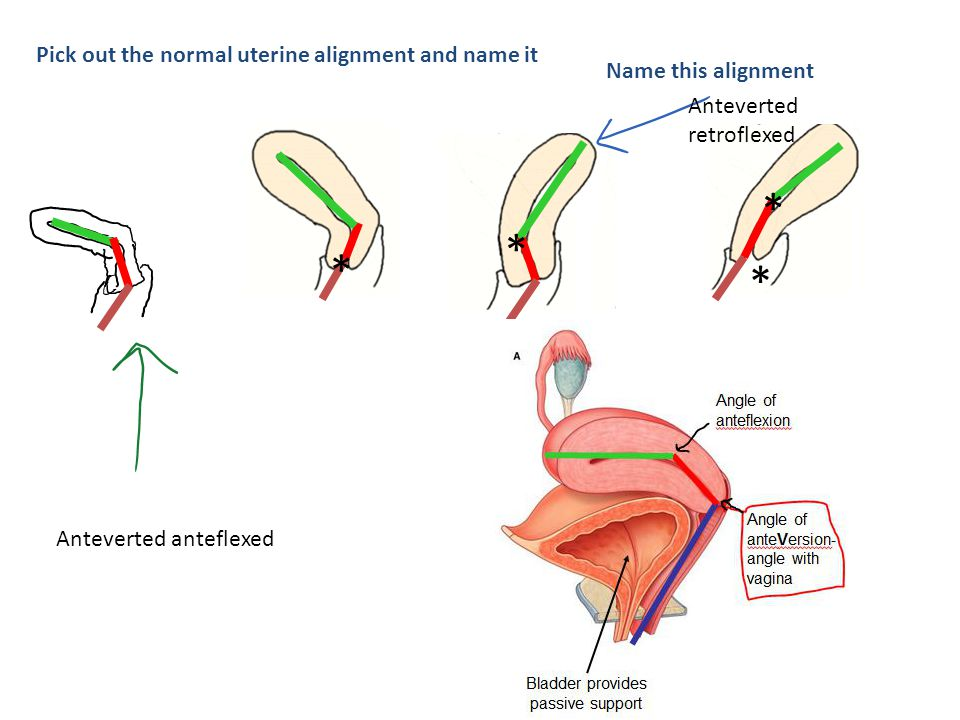 Pick out the normal uterine alignment and name it * * * * Anteverted anteflexed Name this alignment Anteverted retroflexed