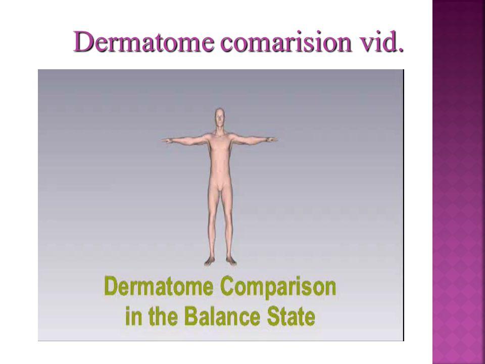 Dermatome comarision vid.