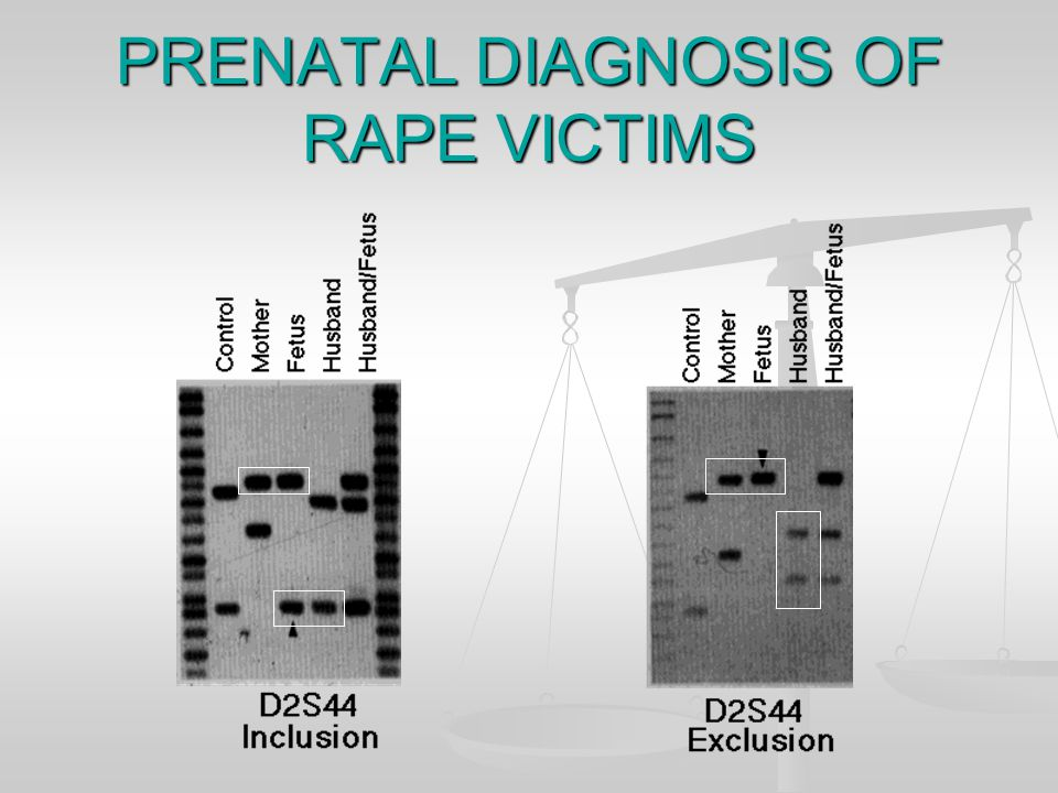 PRENATAL DIAGNOSIS OF RAPE VICTIMS Inclusion: match between husband and fetus Inclusion: match between husband and fetus Exclusion: no match between husband and fetus Exclusion: no match between husband and fetus (Rule out, rule in.