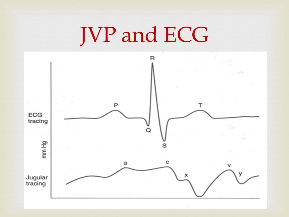  JVP and ECG