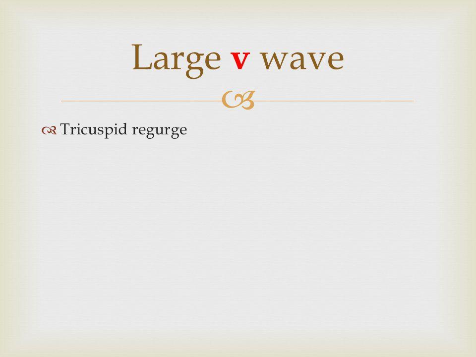   Tricuspid regurge Large v wave