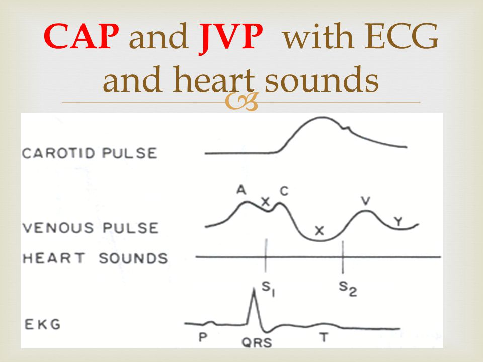  CAP and JVP with ECG and heart sounds