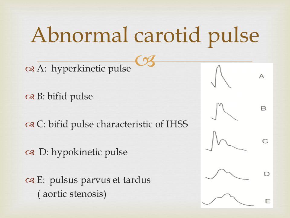   A: hyperkinetic pulse  B: bifid pulse  C: bifid pulse characteristic of IHSS  D: hypokinetic pulse  E: pulsus parvus et tardus ( aortic stenos