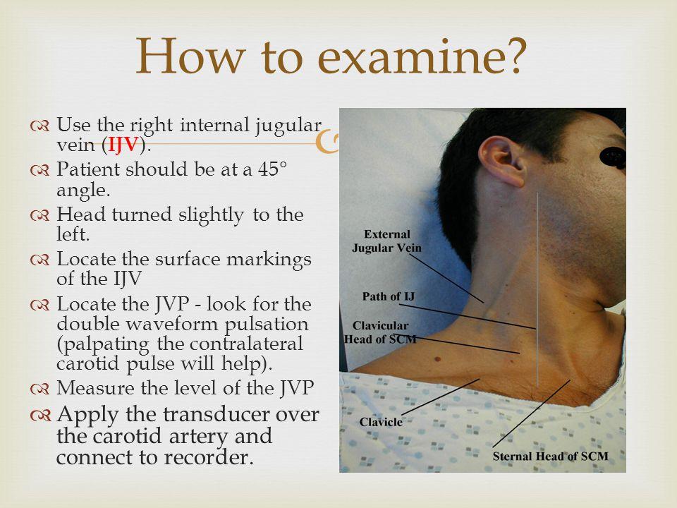   A: hyperkinetic pulse  B: bifid pulse  C: bifid pulse characteristic of IHSS  D: hypokinetic pulse  E: pulsus parvus et tardus ( aortic stenosis) Abnormal carotid pulse
