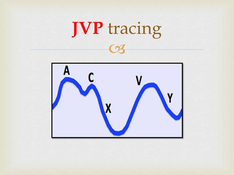  JVP tracing and Cardiac Cycle