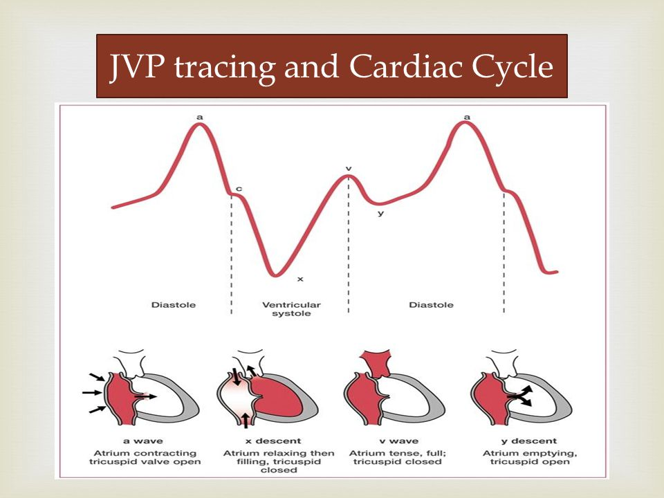   Wave a : a trial contraction  Wave c : bulging of closed tri c uspid into the right atrium during isovolumetric systole  Wave x : the tricuspid valve moves downward  Wave v : v enous filling  Wave y : atrial empt y ing JVP