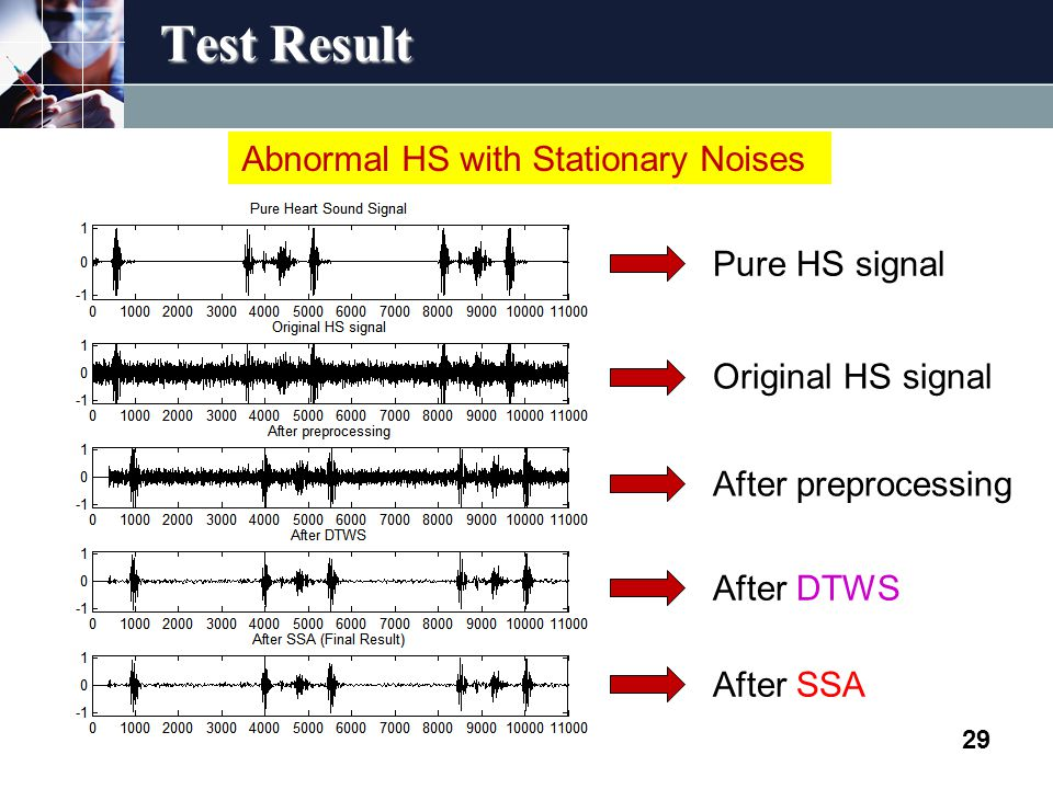 Test Result 29 Abnormal HS with Stationary Noises Pure HS signal Original HS signal After preprocessing After DTWS After SSA