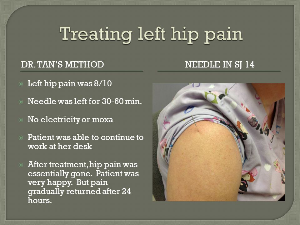 DR. TAN'S METHODNEEDLE IN SJ 14  Left hip pain was 8/10  Needle was left for 30-60 min.  No electricity or moxa  Patient was able to continue to w