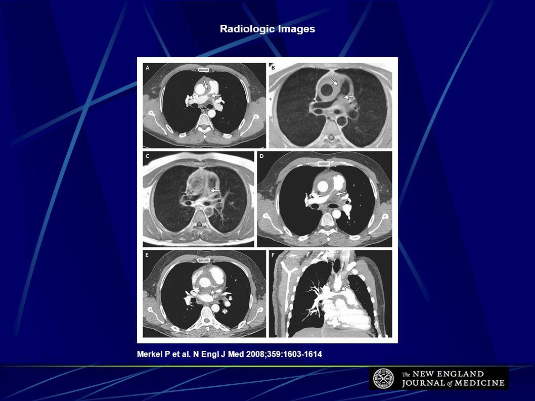 Radiologic Images Merkel P et al. N Engl J Med 2008;359:1603-1614