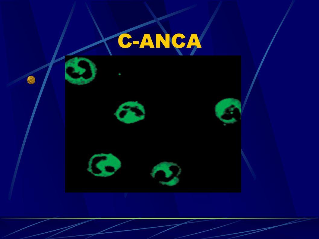 C-ANCA