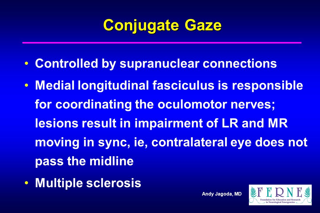 Andy Jagoda, MD Conjugate Gaze Controlled by supranuclear connections Medial longitudinal fasciculus is responsible for coordinating the oculomotor ne