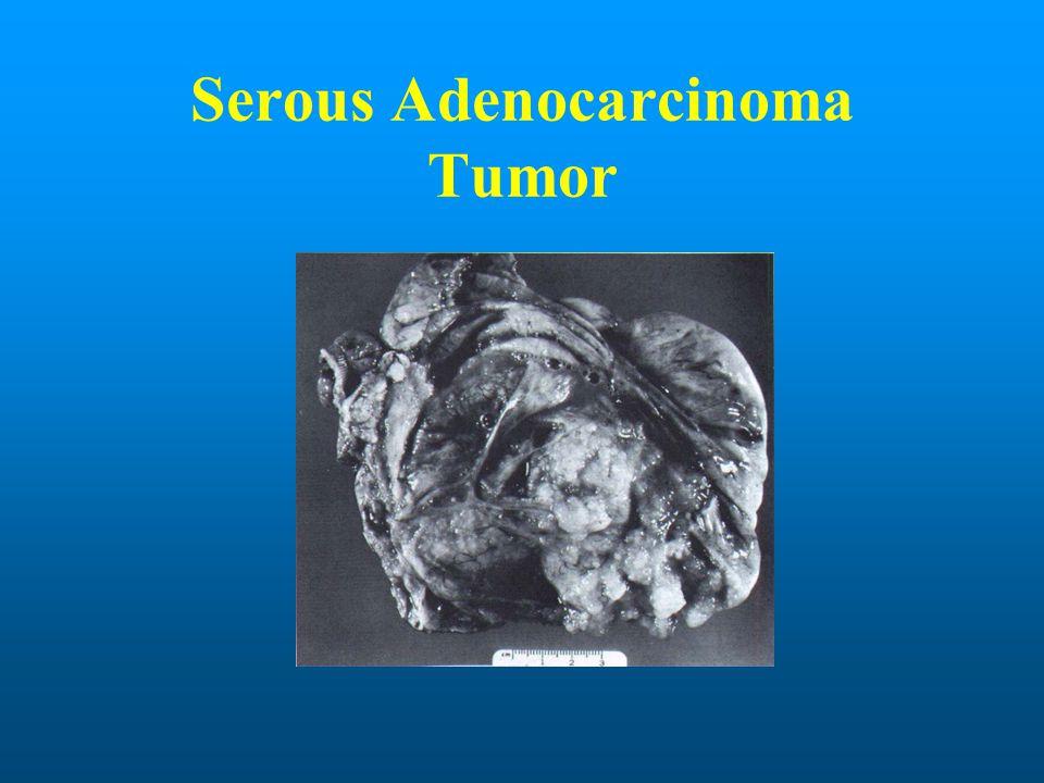 Serous Adenocarcinoma Tumor