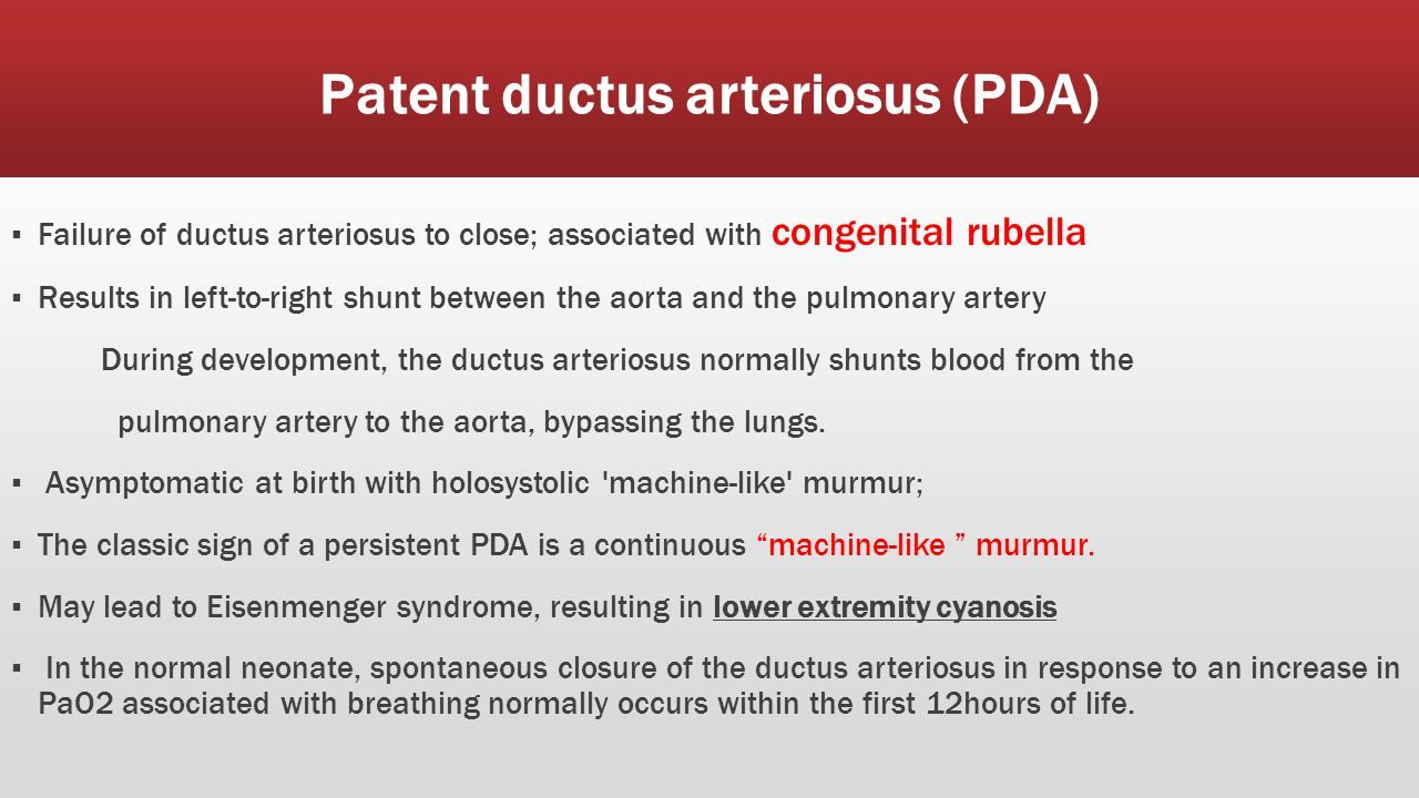 Clinical presentation of PDA ■ Use of prostaglandin E will keep the shunt open.